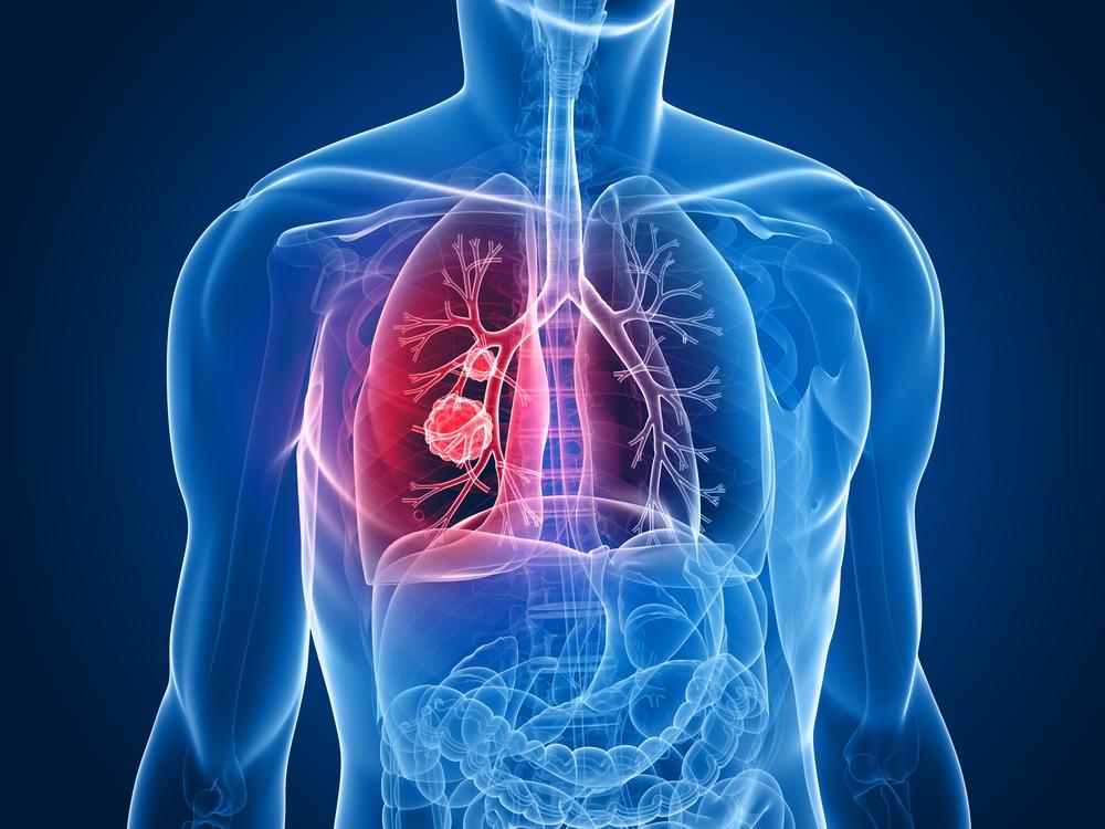 Akciğer kanseri erken evrede saptanabilir mi?