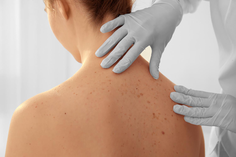 Deri ve Zührevi Hastalıklar (Dermatoloji)